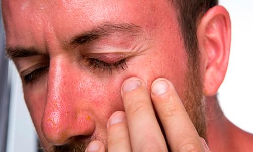 Descripción de foto - Hombre con piel quemada, insolado, con los ojos cerrados. - Crédito de foto - Oncosalud